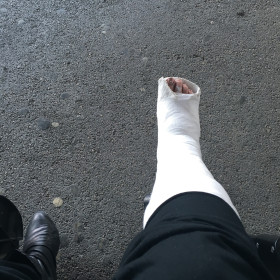 Broken Foot in Cast